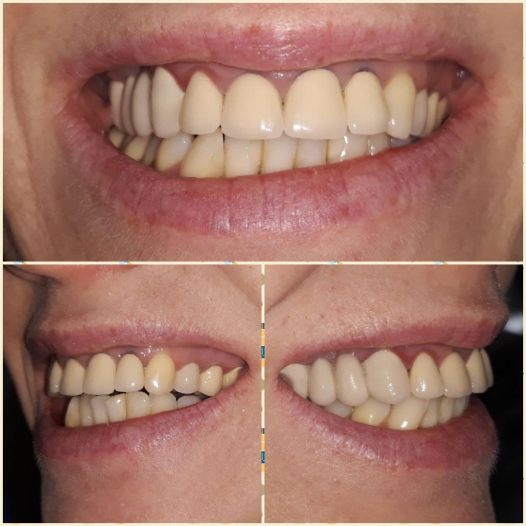 Zambetul pacientei inainte de tratament