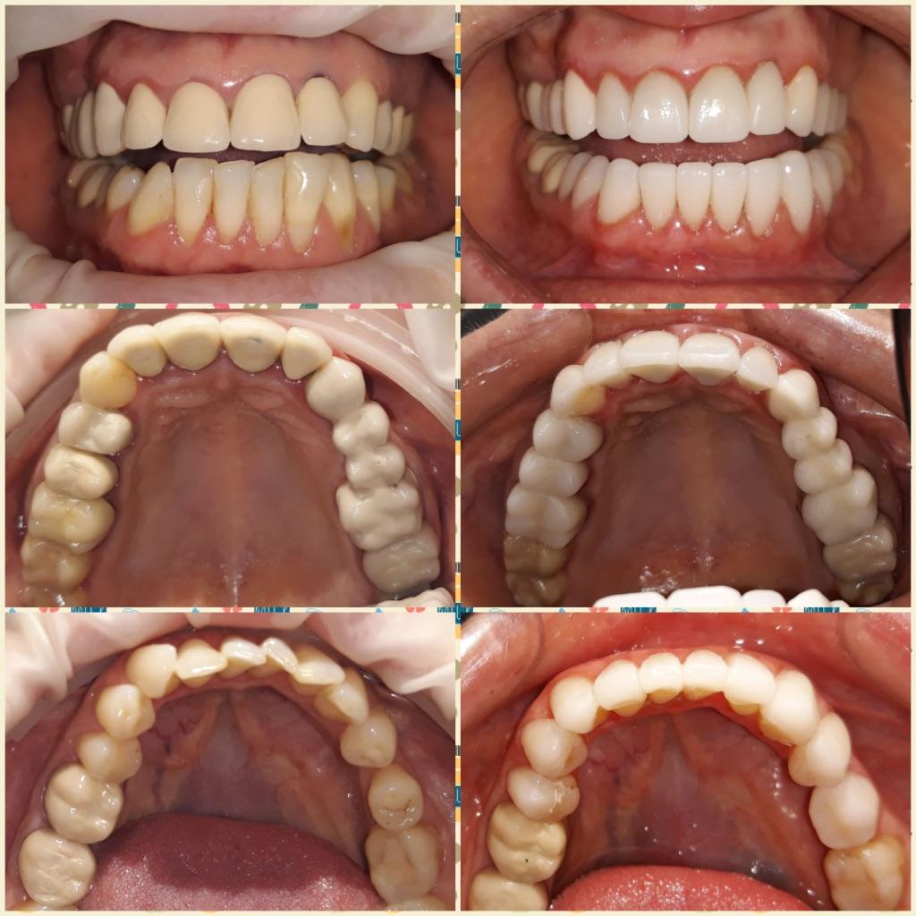 Aspectul arcadelor dentare inainte si dupa tratament