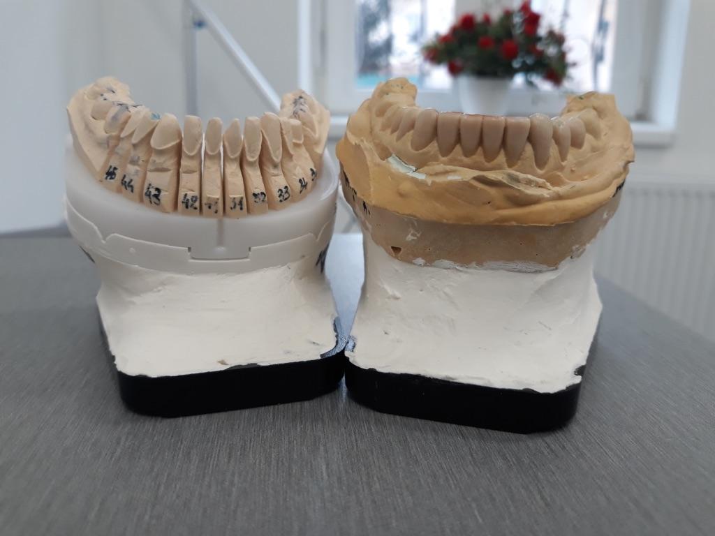 Model arcada inferioara cu dintii pregatiti prin slefuire si simulare in ceara a fatetelor finale