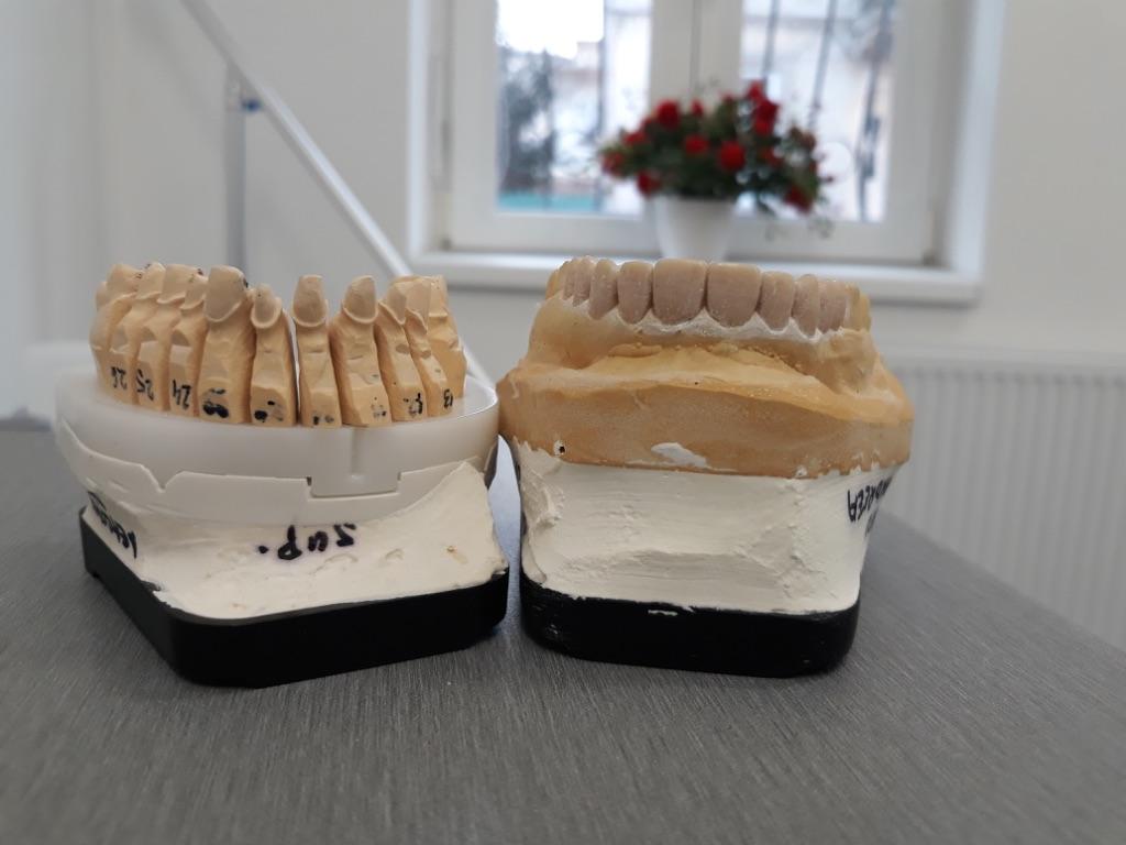 Model arcada superioara cu dintii pregatiti prin slefuire si simulare in ceara a coroanelor finale