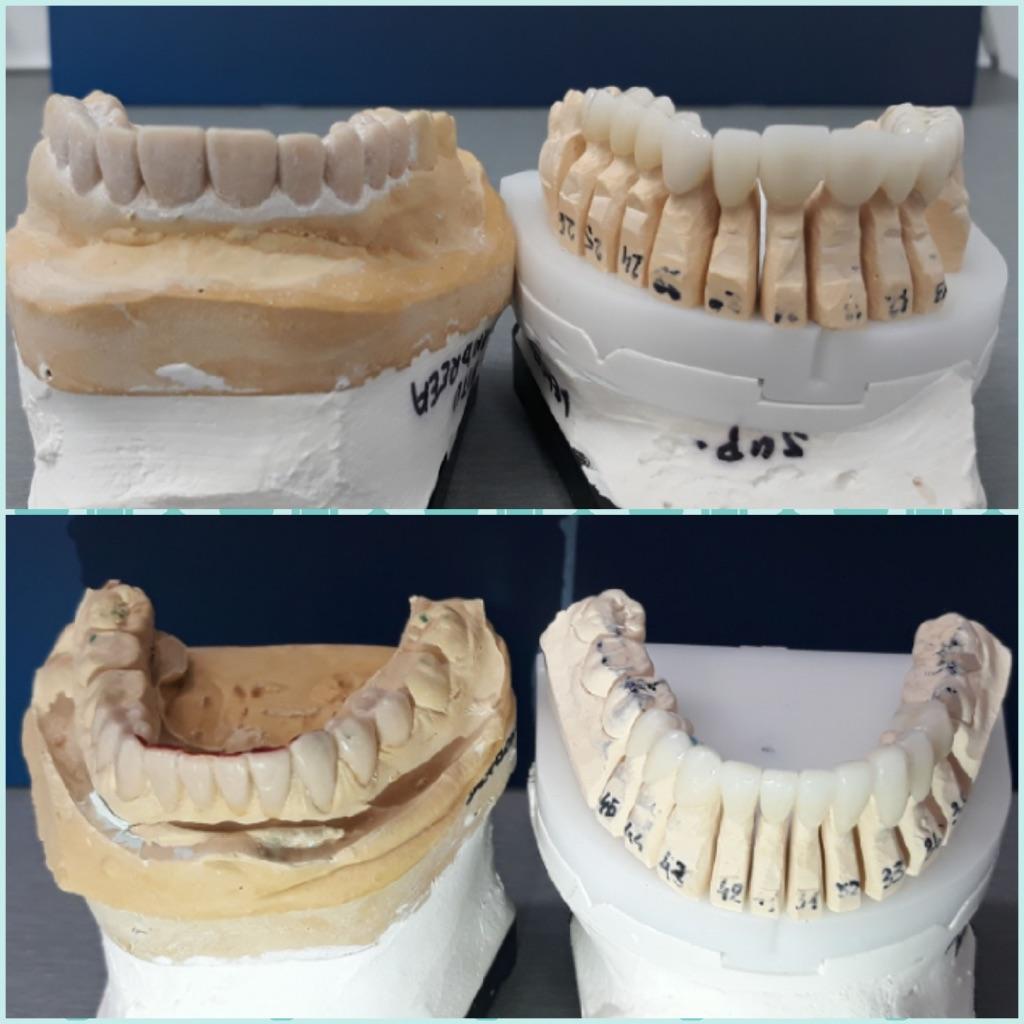 Comparatie intre wax-up si coroanele finale