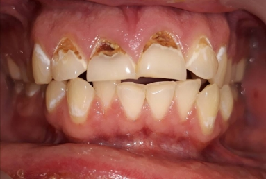 carii incisivi - demineralizare smalt dentar